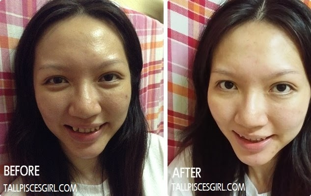 Before and after 3 weeks consumption of Mega Alpha Alpha Fish Collagen 200,000mg