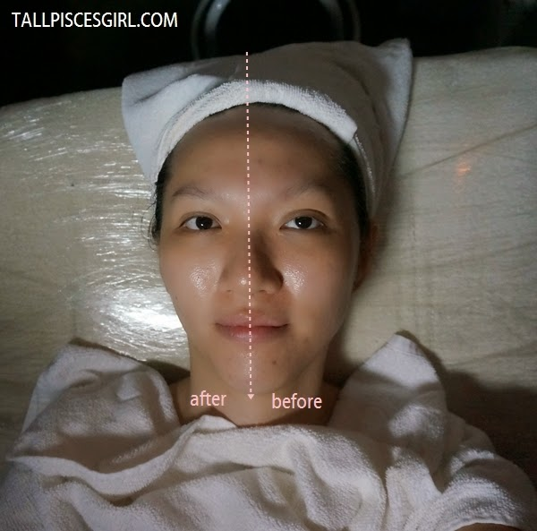 Before - After CRES Wellness Plotox Facial