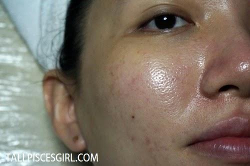 Pore size after Plotox treatment