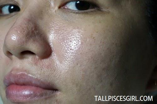 Pore size before Plotox treatment